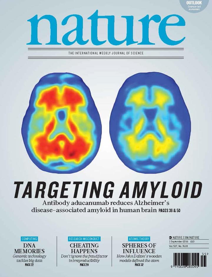 Nova terapia contra Alzheimer retarda perda de memória