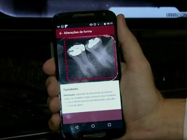 App da Unicamp que ajuda a entender radiografia é baixado em 80 países